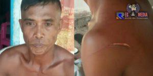 Berawal Dari Miras, Seorang Pria Di Bolmut Jadi Korban Pembacokan